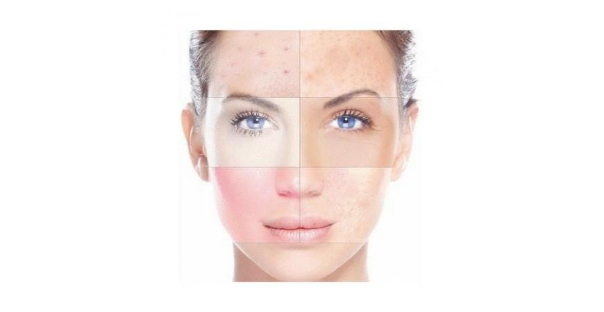Rutina de cuidados para las pieles grasas